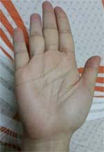 Bàn tay chuẫn kích thước