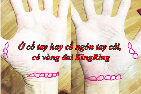 O co tay va ngon tay cai co vong kingring (vong dai vua chua)
